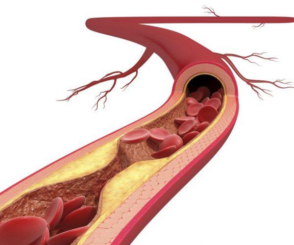 бляшки в кровеносном сосуде на схеме