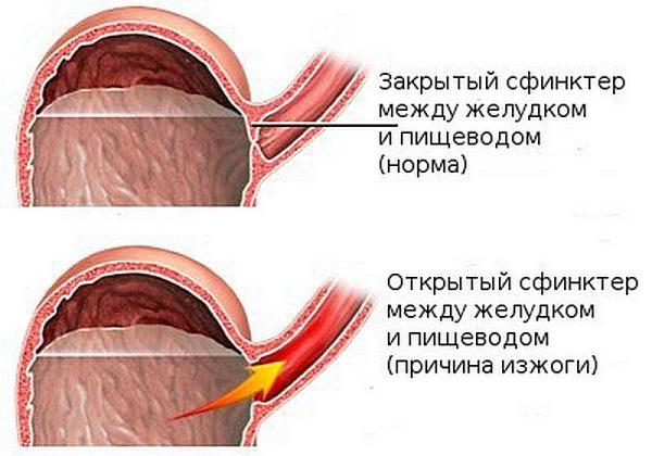 Схематическое сравнение функционирования закрытого и открытого пищеводного сфинктера