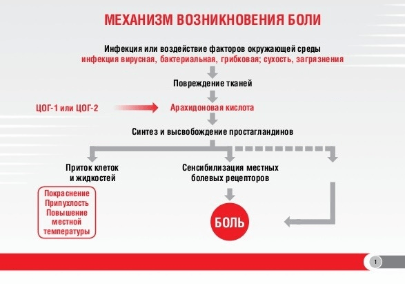 Схема механизма возникновения боли