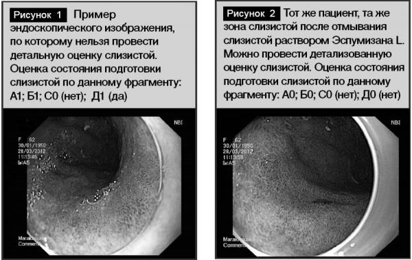 Сравнение эндоскопических изображений слизистой оболочки брюшной полости без предварительного приёма Эспумизана и с предварительным приёмом