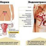 Локализация эндометрия в норме и при эндометриозе