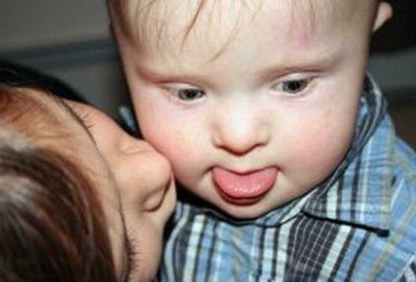 мальчик с синдромом Дауна, которого целует мама