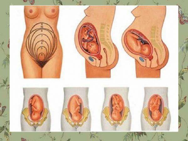 Варианты головного предлежания плода в материнской утробе