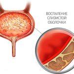 Воспалённая слизистая оболочка мочевого пузыря при цистите