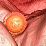 Зародыш в полости матки