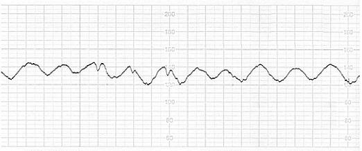 График синусоидального базального ритма