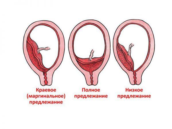 Рисунки видов предлежания плаценты