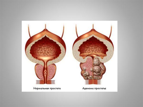 Аденома предстательной железы и норма