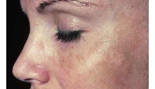 Пигментные пятна на лице у беременной