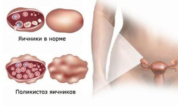 Поражение яичников поликистозом