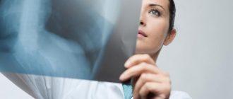 Беременным лучше избегать процедуры рентгена, но в некоторых ситуациях такое исследование необходимо проводить.