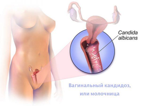 Пример поражения грибком Кандида влагалища женщины