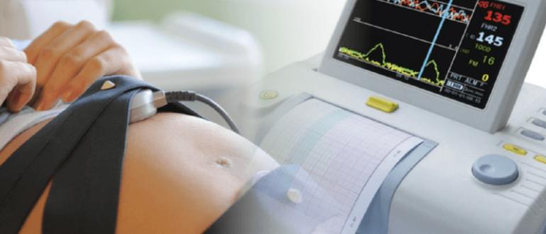 Многие врачи пытаются определить пол будущего ребёнка по его сердцебиению, однако эта методика недостаточно достоверна.