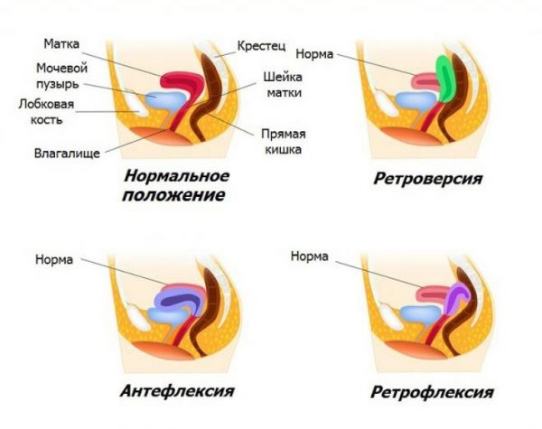 Схема загиба матки
