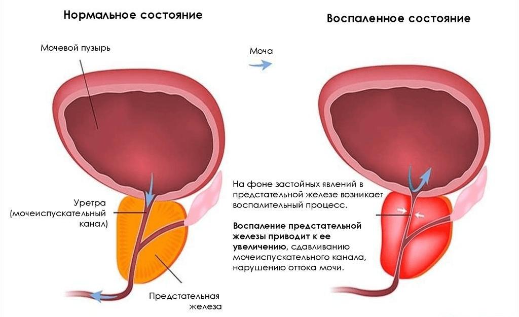 простатит сперматозоид