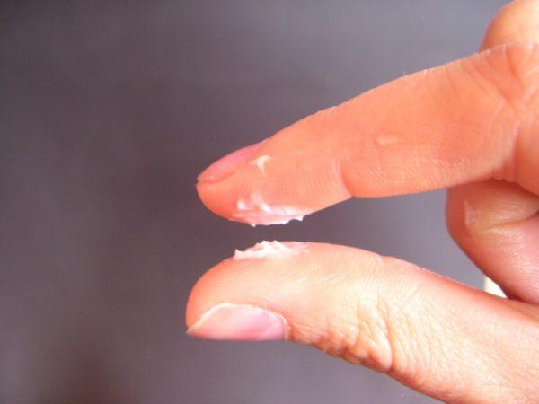 Выделения из влагалища во время молочницы на пальцах