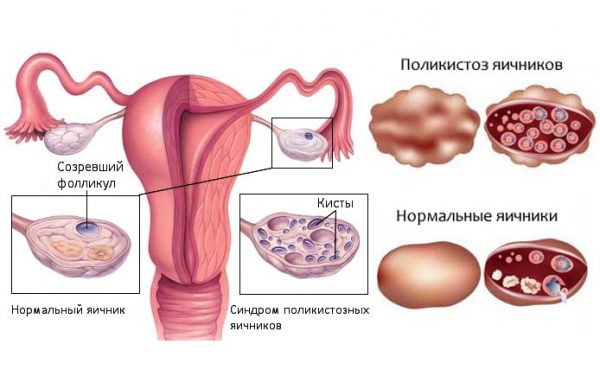 Схема поликистоза яичников