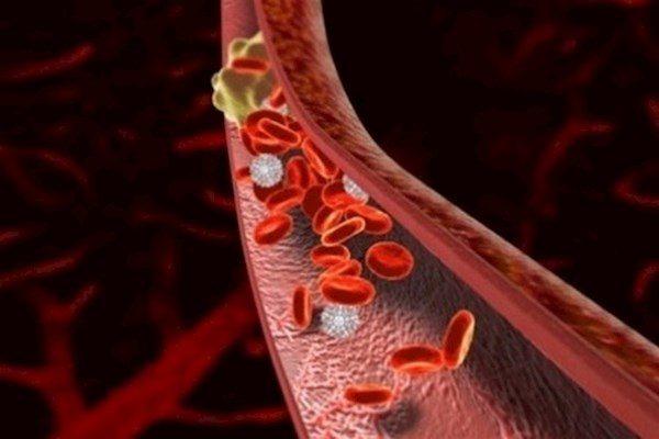 Схема скопления эритроцитов в крови