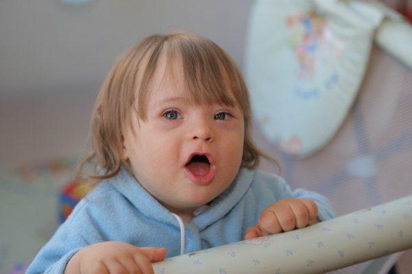 ребёнок с синдромом Дауна, стоит с открытым ртом
