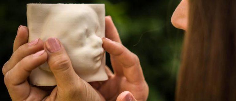 3D Ultrasonograthy