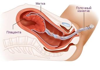 Изгнание плаценты на последнем этапе родов