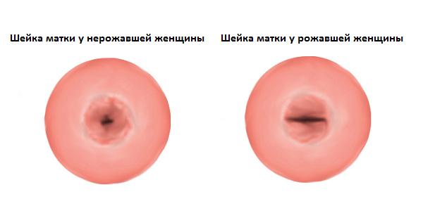 Шейка матки у нерожавшей и рожавшей женщины