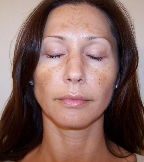 Как выглядят пигментные пятная на лице у беременной