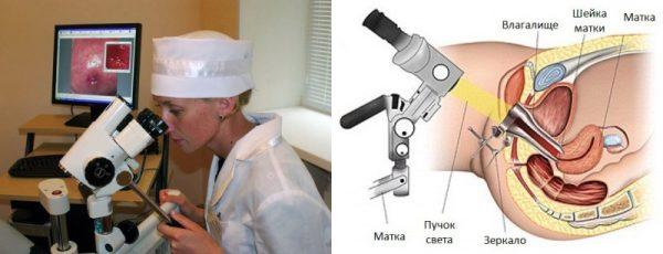 Врач смотрит в колькоскоп; луч прибора, направленный во влагалище