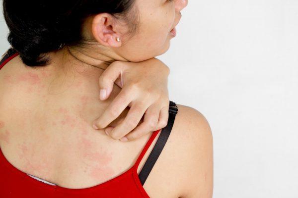 женщина чешет спину со следами сыпи