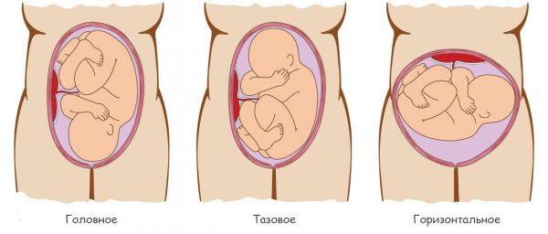 Возможные варианты расположения плода в утробе