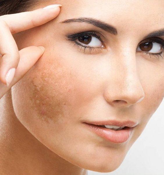 Лицо женщины с пигментным пятном на щеке