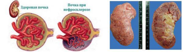 Нефросклероз почки